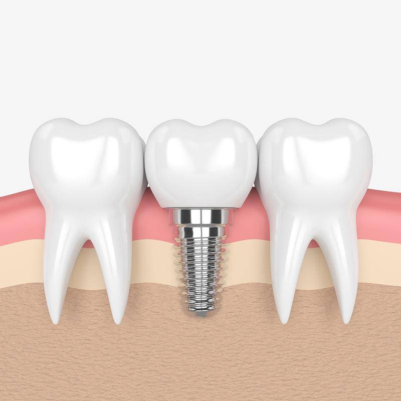 especialidades-implantes
